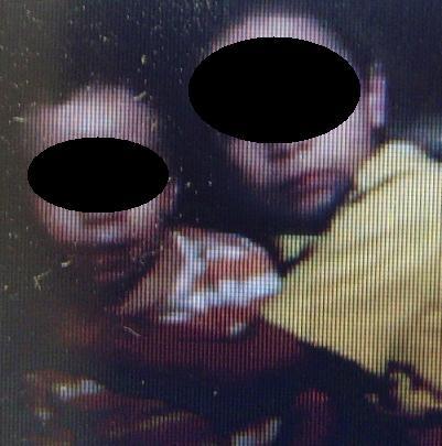 El de la derecha es el niño herido en El Mirador, abrazando a su hermanito de dos años.