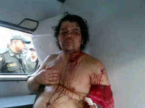 Alias 'El Gomelo' sobrevivió a tres heridas de bala. Foto cortesía.