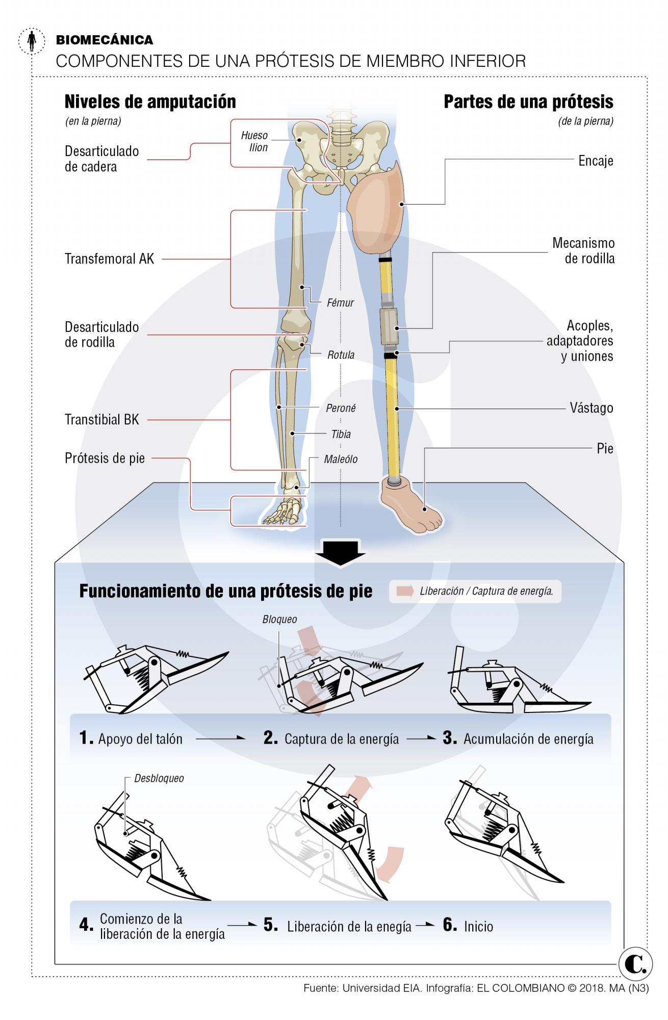 Prótesis para que los deportistas no paren