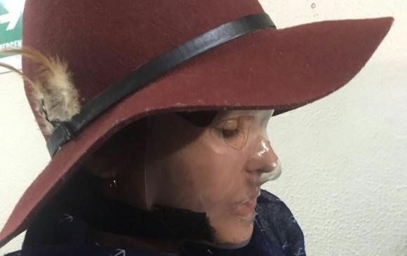 Condenan al responsable del ataque con ácido a Jenny Pardo