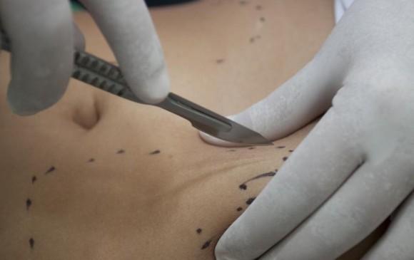 Cierran clínica estética en Cali donde murió mujer por liposucción