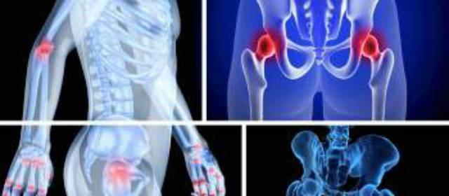 Científicos reconstruyen huesos dañados empleando grasa corporal