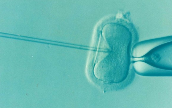 Bebé tiene tres padres genéticos