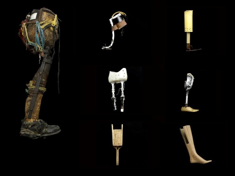 Prótesis artesanales que recoge la corporación Mahavir Kamina, quien entrega nuevas a personas con discapacidad. Fotos: Manuel Saldarriaga.