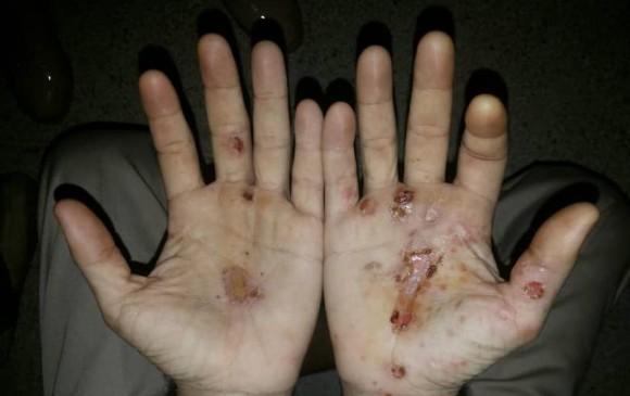 Marcas de posible tortura en centro de reclusión de Venezuela. FOTO: CORTESÍA
